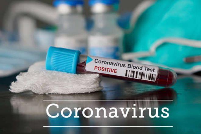 Covid-19: Angola regista quatro novos casos e totaliza 81 infetados